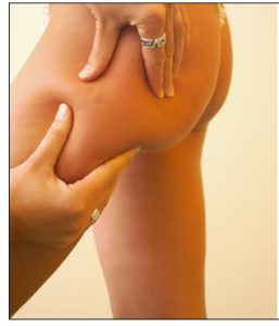 Cellulite in the thigh area
