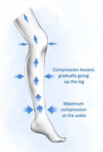How graduated compression stockings apply pressure to the legs