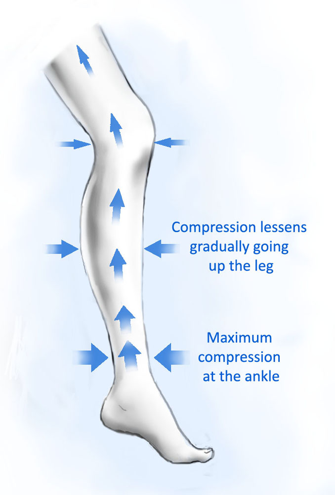 How Do Compression Stockings Actually Work?