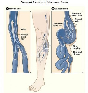 Illustration of normal veins compared to varicose veins