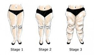 Lipedema Stages 1, 2 & 3